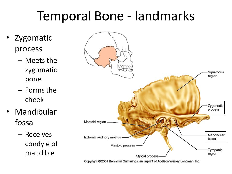 Temporal Bone - landmarks Zygomatic process – Meets the zygomatic bone – Forms the cheek Mandibular fossa – Receives condyle of mandible