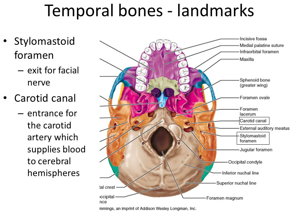 Temporal bones - landmarks Stylomastoid foramen – exit for facial nerve Carotid canal – entrance for the carotid artery which supplies blood to cerebral hemispheres