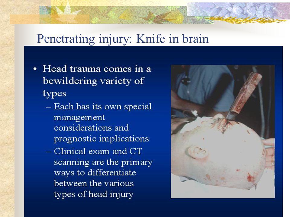 Penetrating injury: Knife in brain