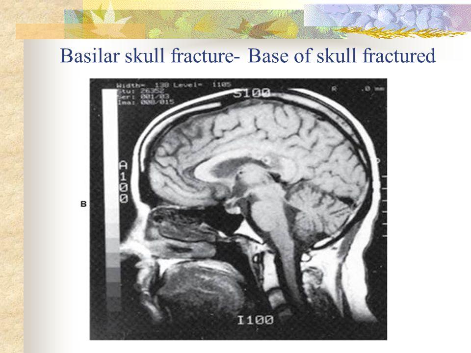 Basilar skull fracture- Base of skull fractured