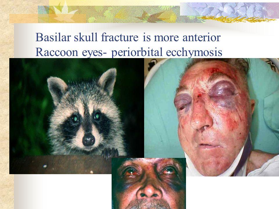 Basilar skull fracture is more anterior Raccoon eyes- periorbital ecchymosis