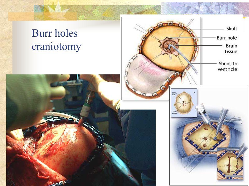 Burr holes craniotomy