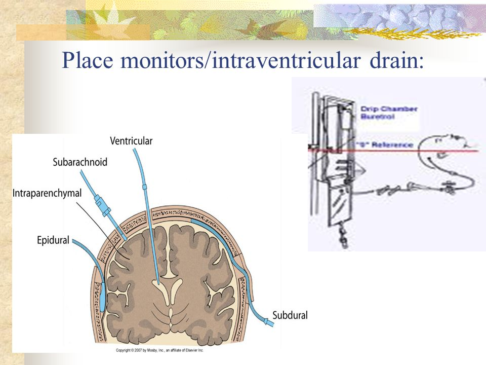 Place monitors/intraventricular drain: