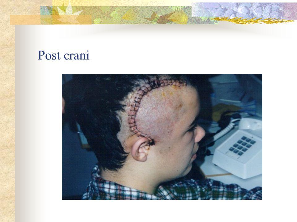 Post crani