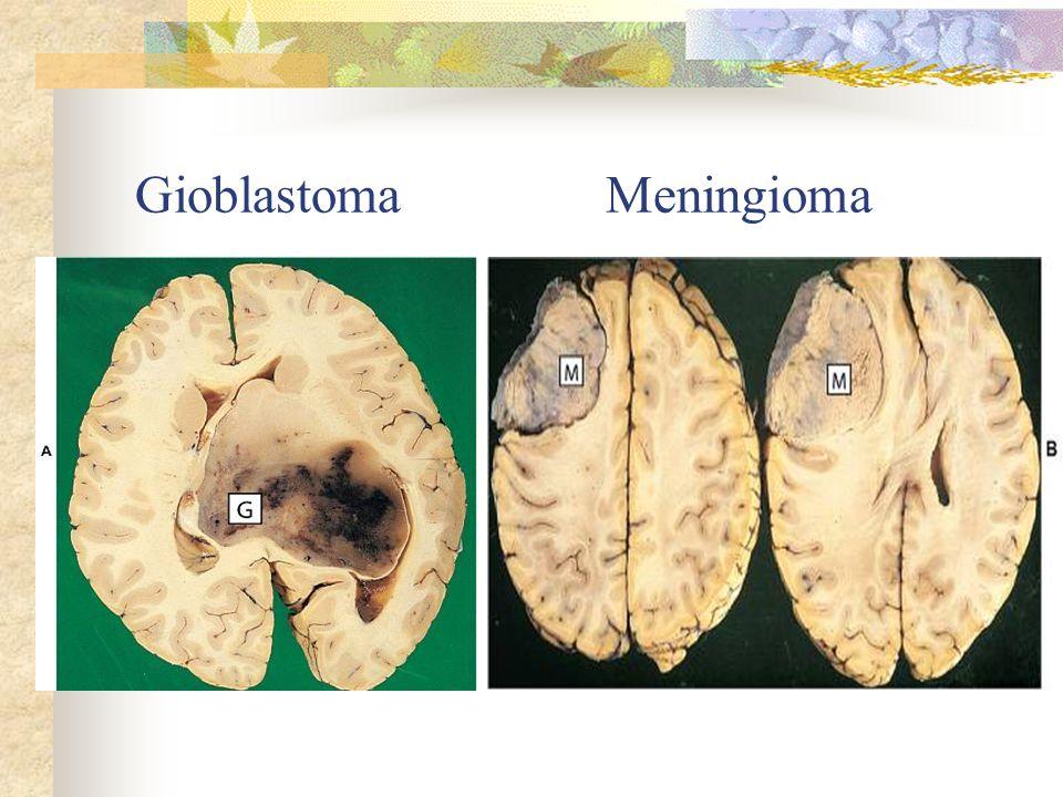 Gioblastoma Meningioma