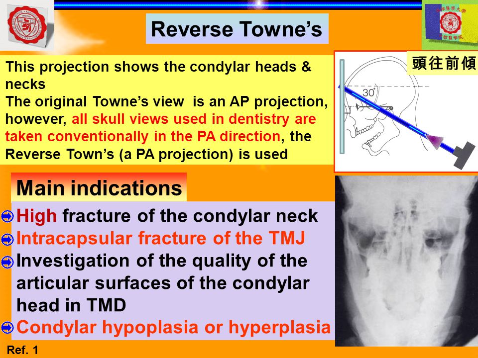 Main indications Reverse Towne's This projection shows the condylar heads & necks The original Towne's view is an AP projection, however, all skull vi