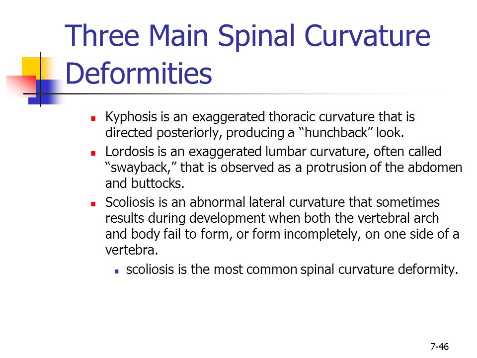 """7-46 Three Main Spinal Curvature Deformities Kyphosis is an exaggerated thoracic curvature that is directed posteriorly, producing a """"hunchback"""" look."""