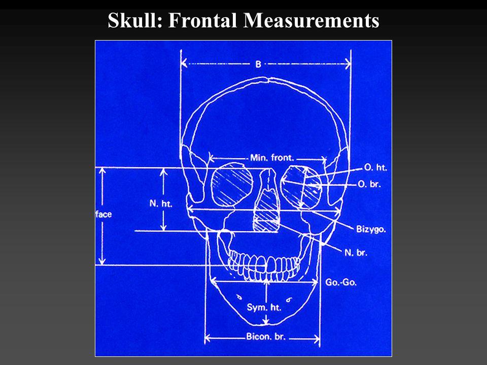 Skull: Frontal Measurements
