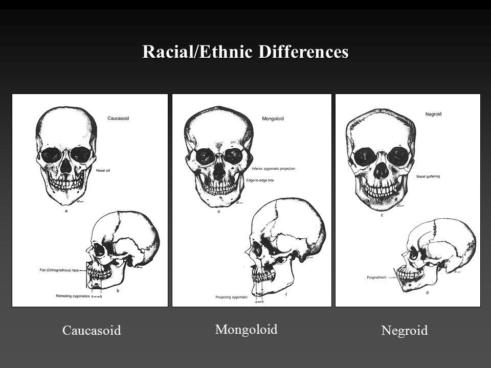 Racial/Ethnic Differences Caucasoid Mongoloid Negroid