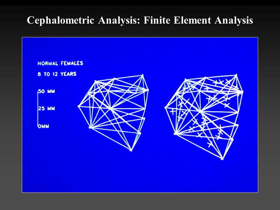 Cephalometric Analysis: Finite Element Analysis