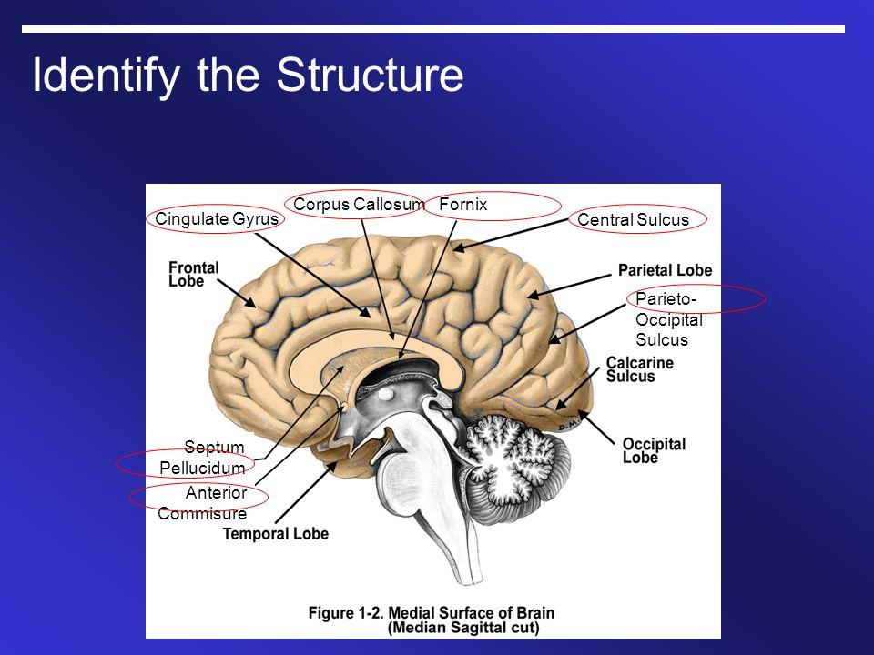 Identify the Structure Cingulate Gyrus Corpus CallosumFornix Central Sulcus Parieto- Occipital Sulcus Septum Pellucidum Anterior Commisure