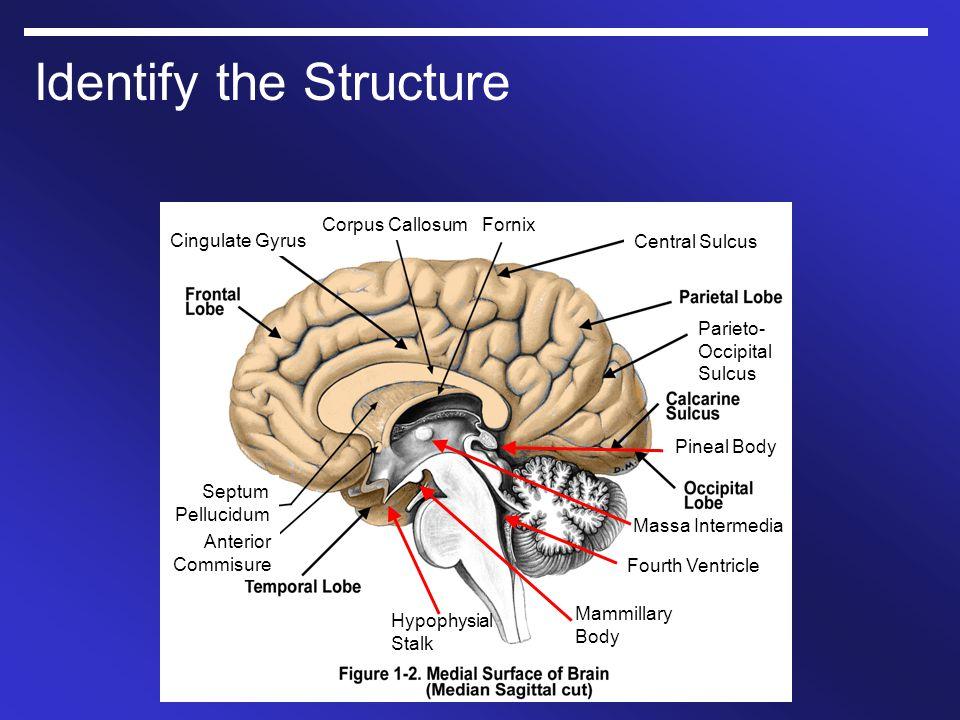 Identify the Structure Cingulate Gyrus Corpus CallosumFornix Central Sulcus Parieto- Occipital Sulcus Septum Pellucidum Anterior Commisure Massa Inter