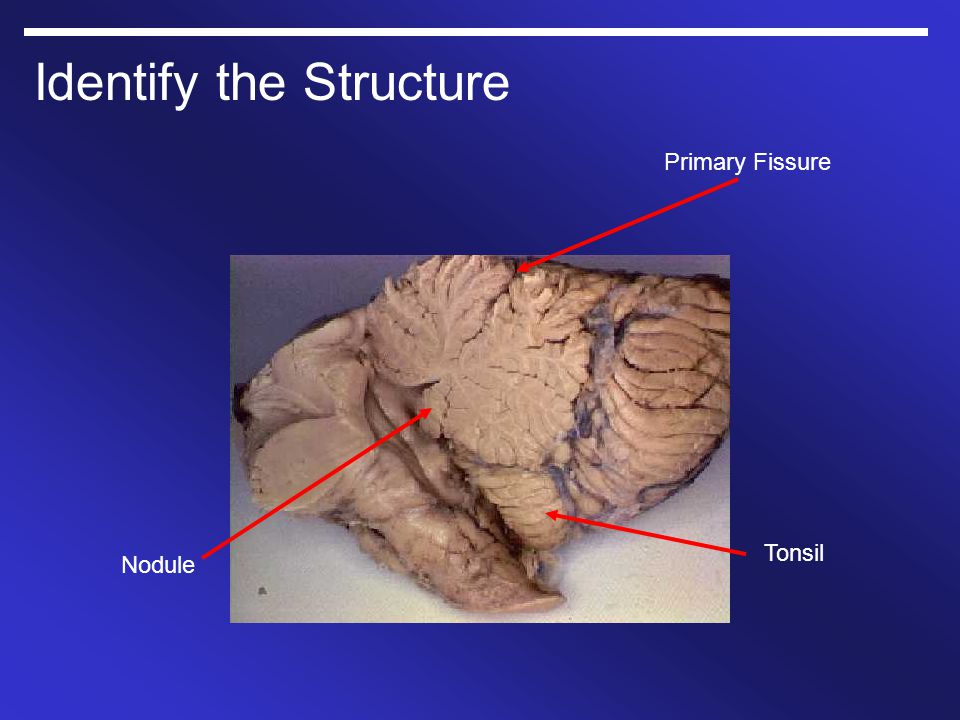 Identify the Structure Primary Fissure Tonsil Nodule