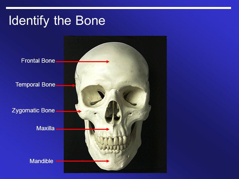 Identify the Bone Mandible Maxilla Zygomatic Bone Temporal Bone Frontal Bone