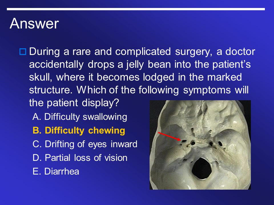 Answer  During a rare and complicated surgery, a doctor accidentally drops a jelly bean into the patient's skull, where it becomes lodged in the mark