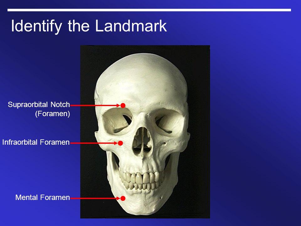Identify the Landmark Mental Foramen Infraorbital Foramen Supraorbital Notch (Foramen)