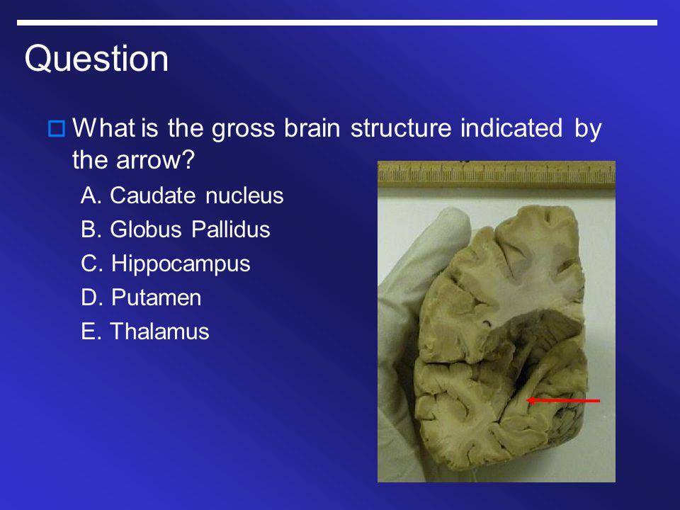 Question  What is the gross brain structure indicated by the arrow? A. Caudate nucleus B. Globus Pallidus C. Hippocampus D. Putamen E. Thalamus