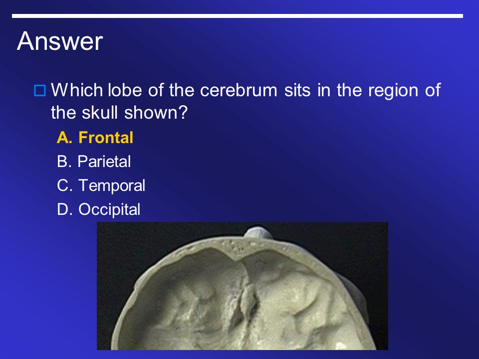 Answer  Which lobe of the cerebrum sits in the region of the skull shown? A. Frontal B. Parietal C. Temporal D. Occipital