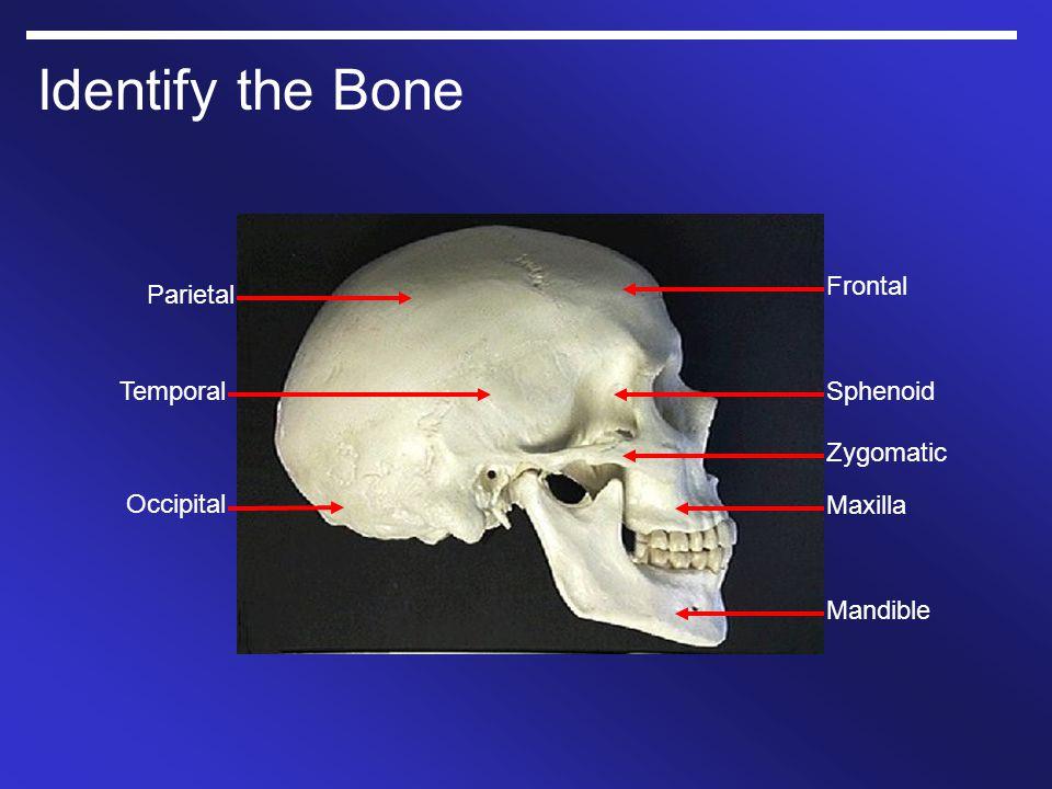 Identify the Bone Parietal Occipital Temporal Frontal Zygomatic Maxilla Mandible Sphenoid