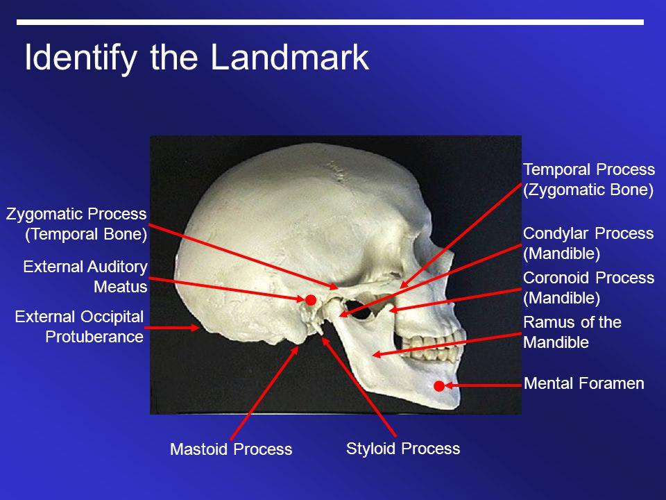 Identify the Landmark External Occipital Protuberance External Auditory Meatus Zygomatic Process (Temporal Bone) Temporal Process (Zygomatic Bone) Con