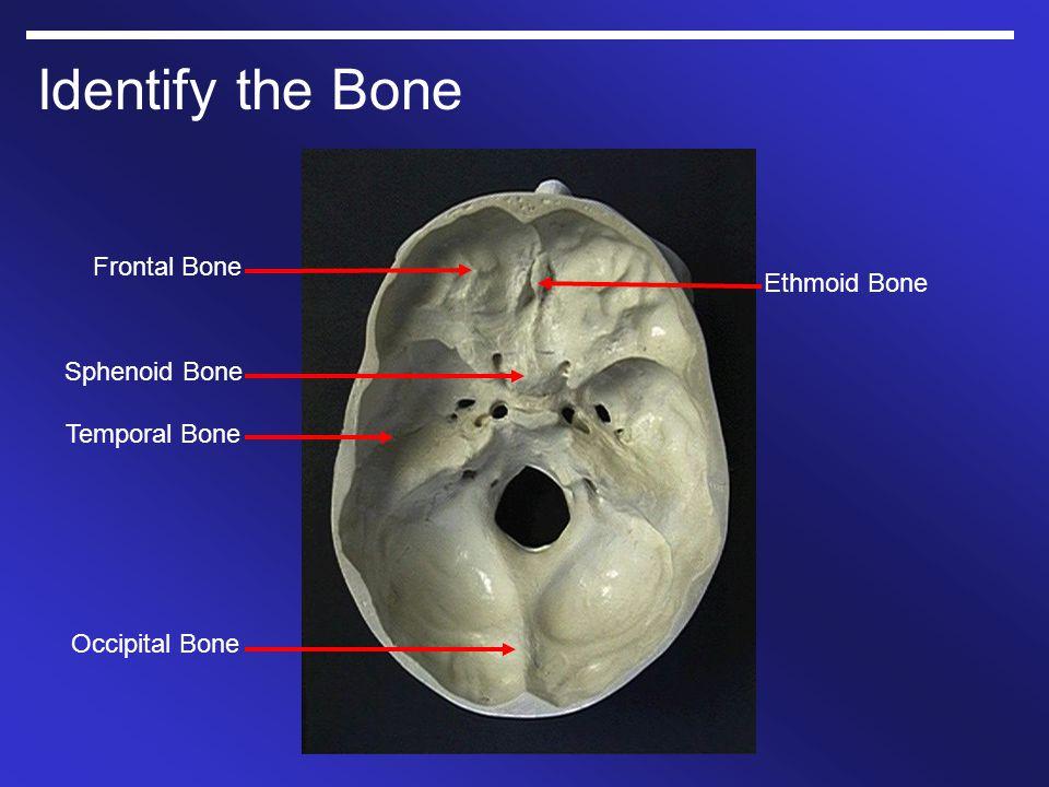 Identify the Bone Occipital Bone Temporal Bone Sphenoid Bone Frontal Bone Ethmoid Bone