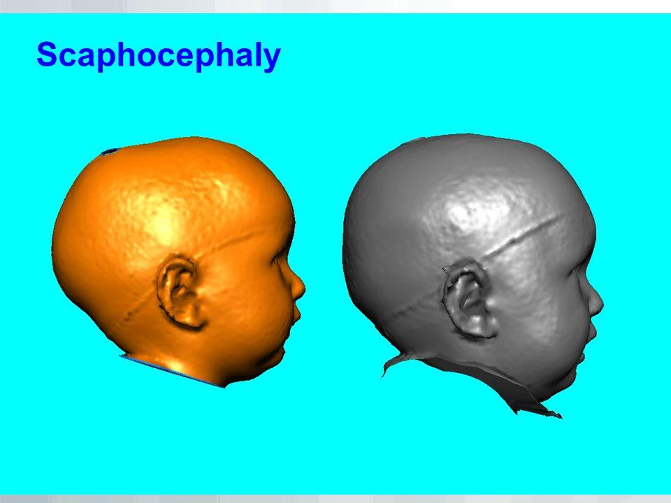 Scaphocephaly