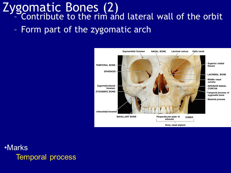 Zygomatic Bones (2) –Contribute to the rim and lateral wall of the orbit –Form part of the zygomatic arch Marks Temporal process
