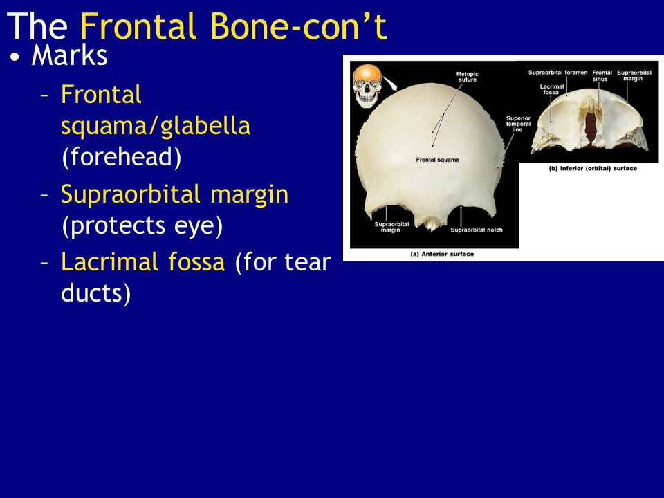 Marks –Frontal squama/glabella (forehead) –Supraorbital margin (protects eye) –Lacrimal fossa (for tear ducts) The Frontal Bone-con't