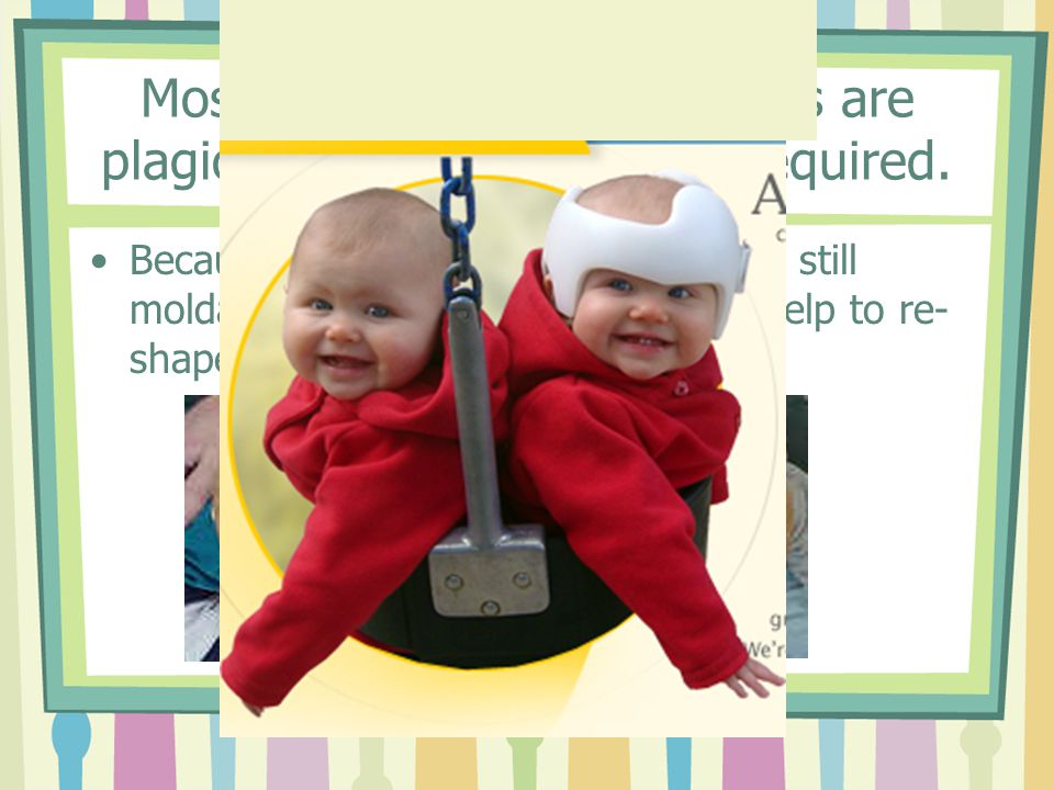 Most infant skull irregularities are plagiocephaly – no surgery required.