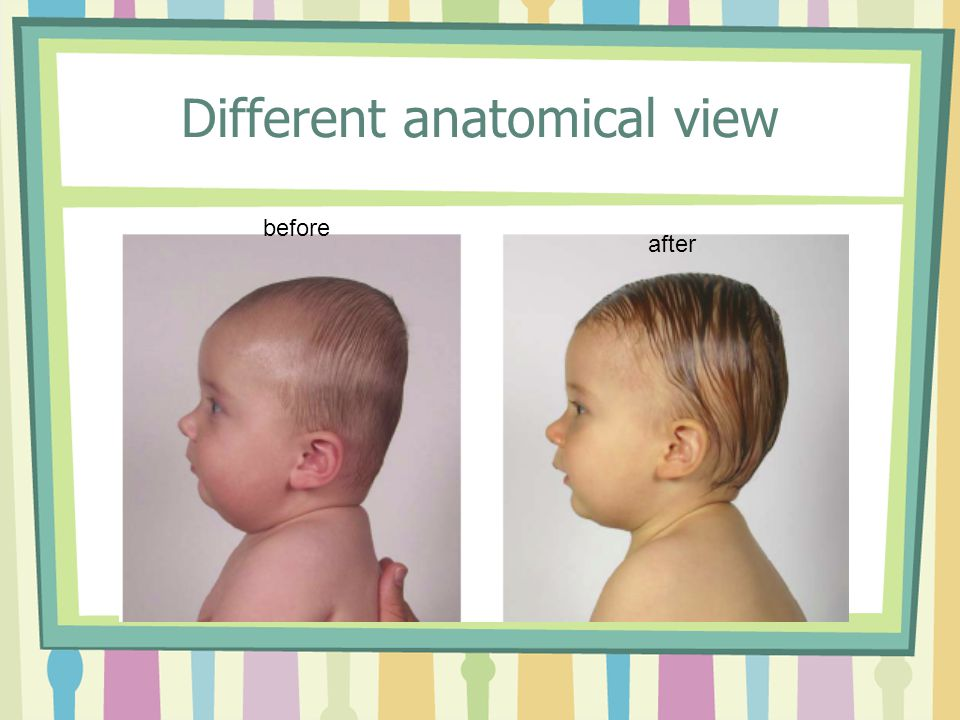 How cute is this baby?! before after