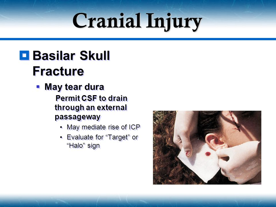 "Cranial Injury  Basilar Skull Fracture  May tear dura  Permit CSF to drain through an external passageway May mediate rise of ICP Evaluate for ""Tar"