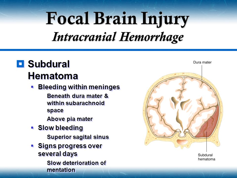  Subdural Hematoma  Bleeding within meninges  Beneath dura mater & within subarachnoid space  Above pia mater  Slow bleeding  Superior sagital s