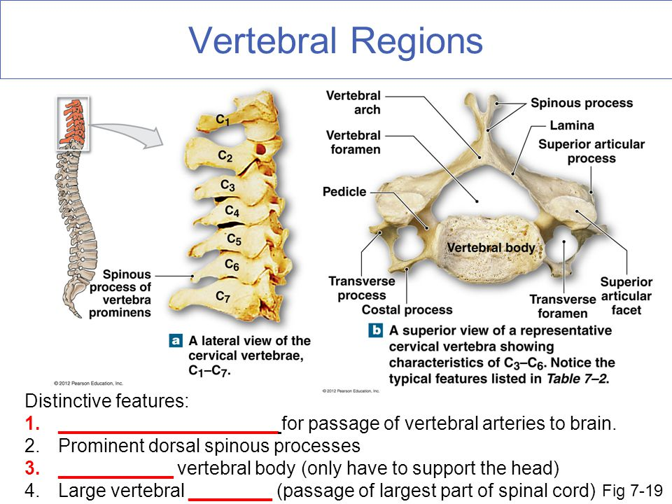 Vertebral Regions Distinctive features: 1._____________________ for passage of vertebral arteries to brain. 2.Prominent dorsal spinous processes 3.___