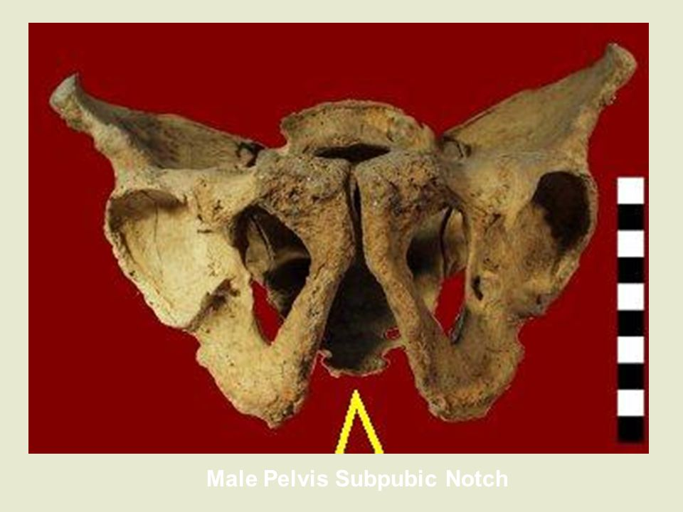 Male Pelvis Subpubic Notch
