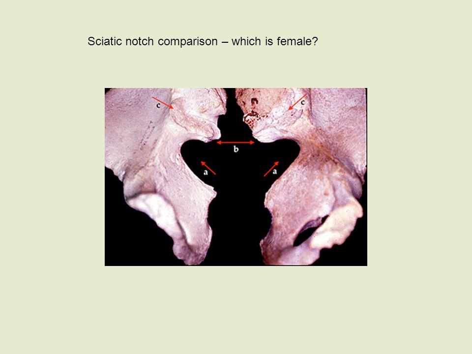 Sciatic notch comparison – which is female
