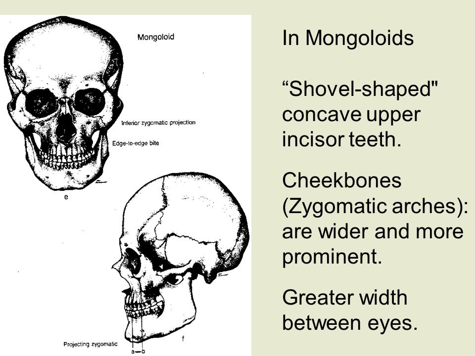 In Mongoloids Shovel-shaped concave upper incisor teeth.