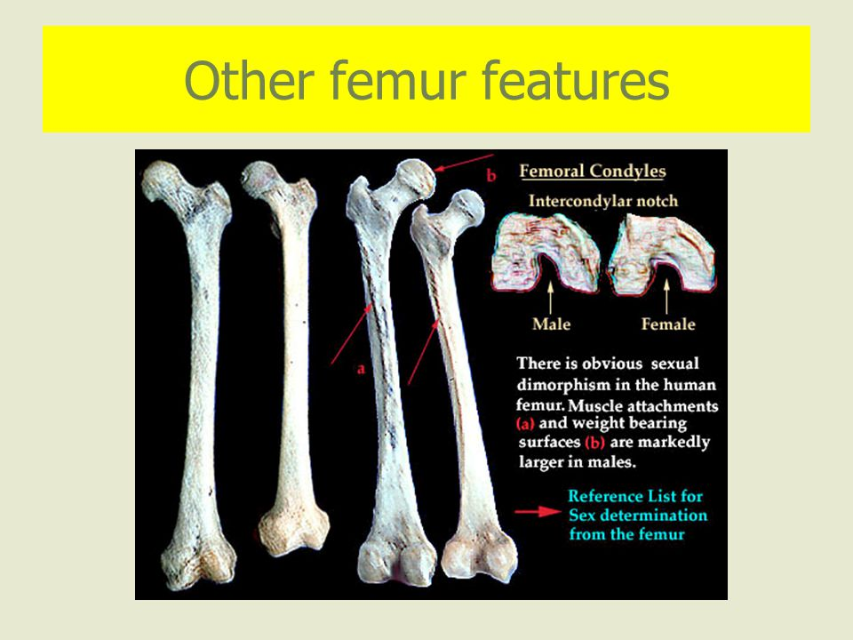 Other femur features