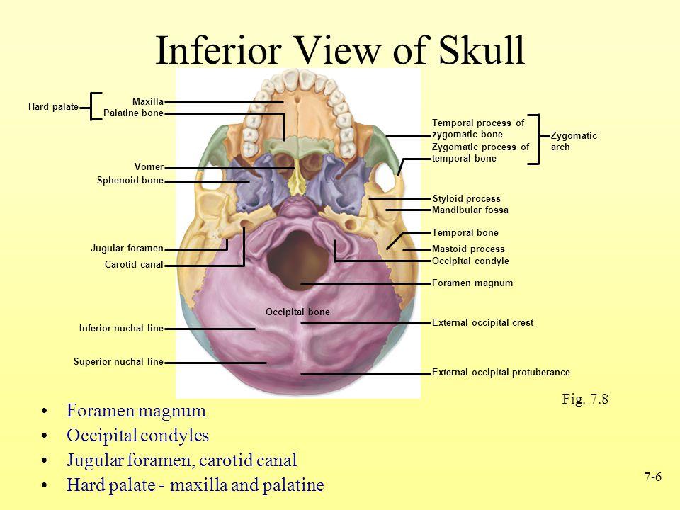 7-6 Inferior View of Skull Foramen magnum Occipital condyles Jugular foramen, carotid canal Hard palate - maxilla and palatine Fig.