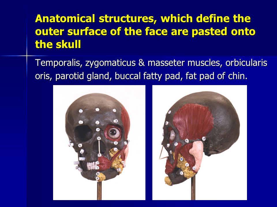 Anatomical structures, which define the outer surface of the face are pasted onto the skull Temporalis, zygomaticus & masseter muscles, orbicularis oris, parotid gland, buccal fatty pad, fat pad of chin.