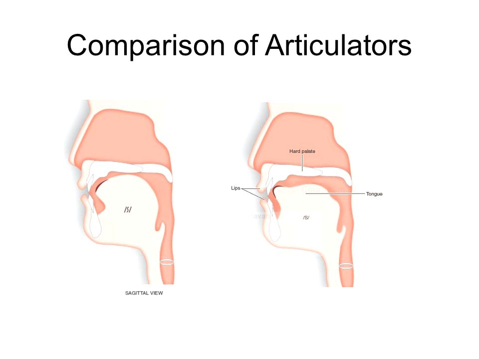Comparison of Articulators