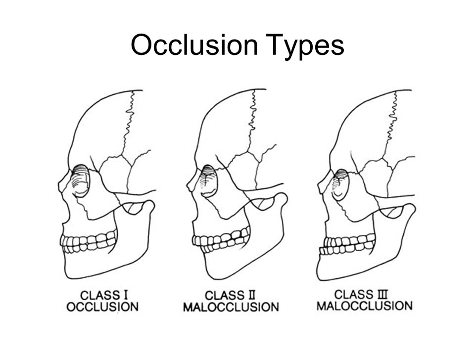 Occlusion Types