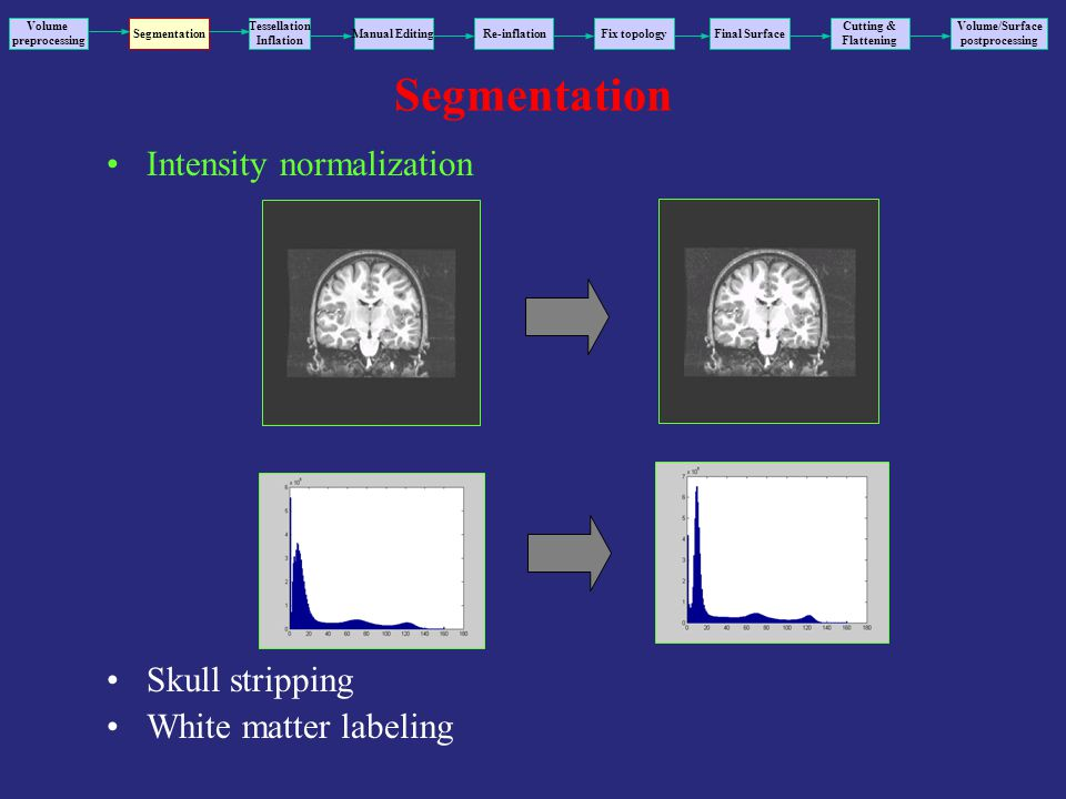 Segmentation Intensity normalization Skull stripping White matter labeling Volume preprocessing Segmentation Tessellation Inflation Manual EditingRe-inflationFix topology Final Surface Volume/Surface postprocessing Cutting & Flattening