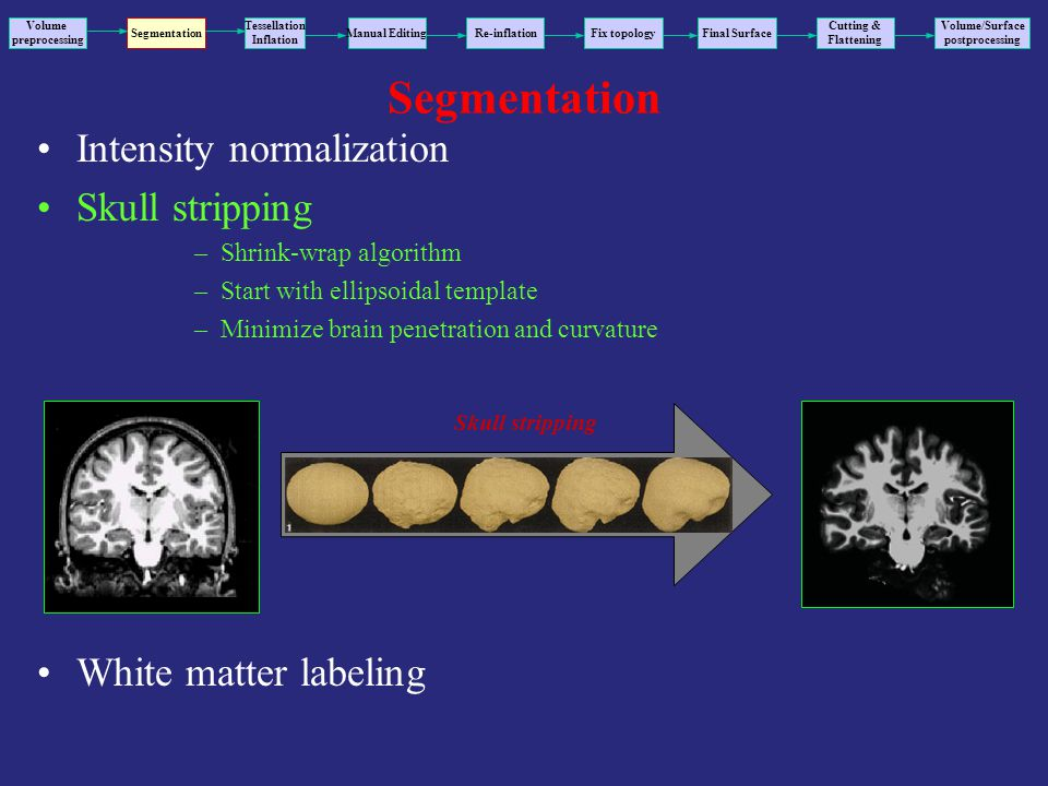 Segmentation Intensity normalization Skull stripping –Shrink-wrap algorithm –Start with ellipsoidal template –Minimize brain penetration and curvature White matter labeling Volume preprocessing Segmentation Tessellation Inflation Manual EditingRe-inflationFix topology Final Surface Volume/Surface postprocessing Cutting & Flattening Skull stripping