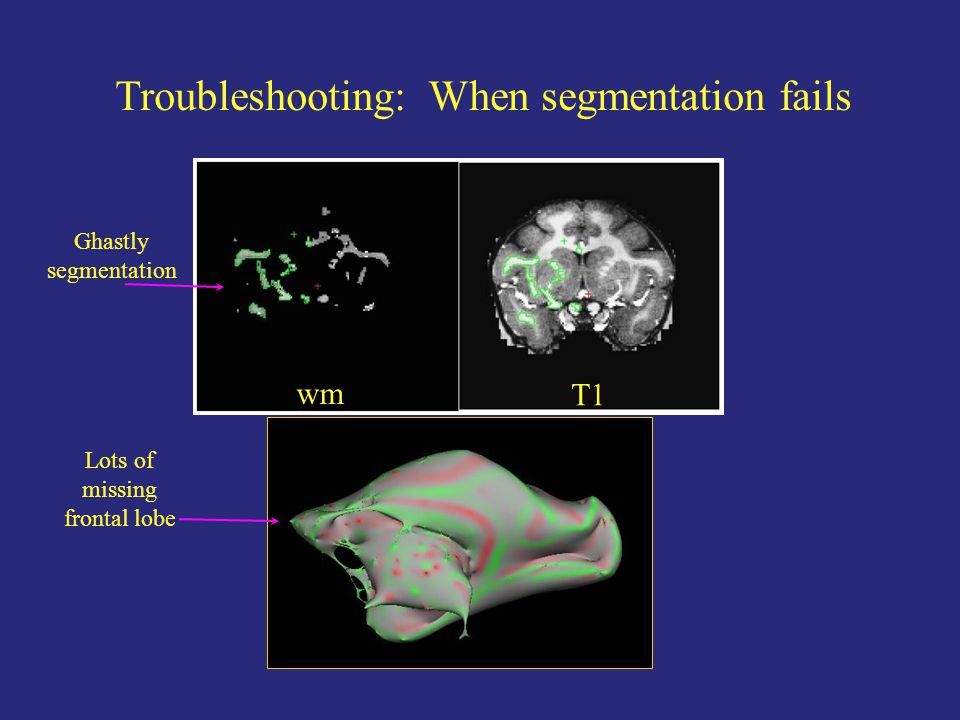 Troubleshooting: When segmentation fails wm T1 Ghastly segmentation Lots of missing frontal lobe
