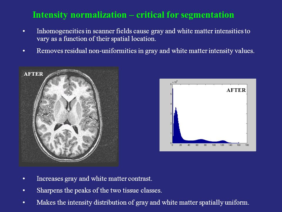 Intensity normalization – critical for segmentation Inhomogeneities in scanner fields cause gray and white matter intensities to vary as a function of their spatial location.
