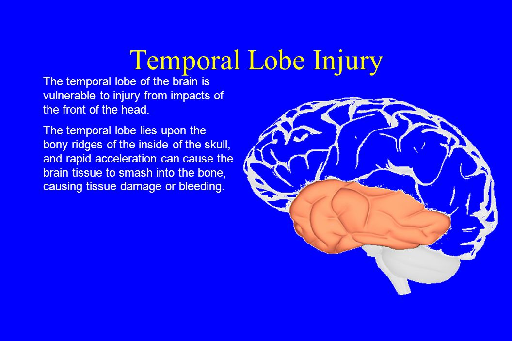 Temporal Lobe Injury The temporal lobe of the brain is vulnerable to injury from impacts of the front of the head.
