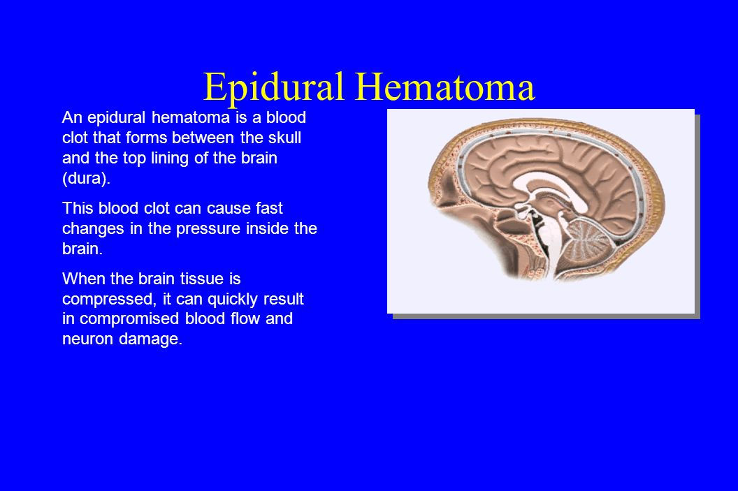 Subdural Hematoma A subdural hematoma is a blood clot that forms between the dura and the brain tissue.