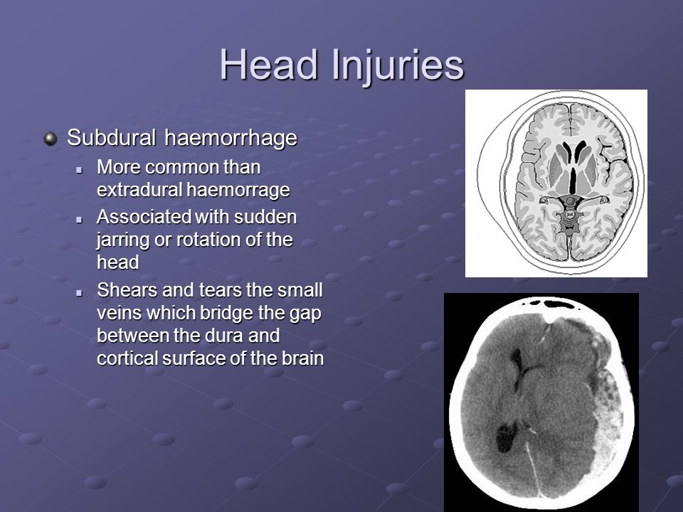 Head Injuries Subdural haemorrhage More common than extradural haemorrage More common than extradural haemorrage Associated with sudden jarring or rotation of the head Associated with sudden jarring or rotation of the head Shears and tears the small veins which bridge the gap between the dura and cortical surface of the brain Shears and tears the small veins which bridge the gap between the dura and cortical surface of the brain