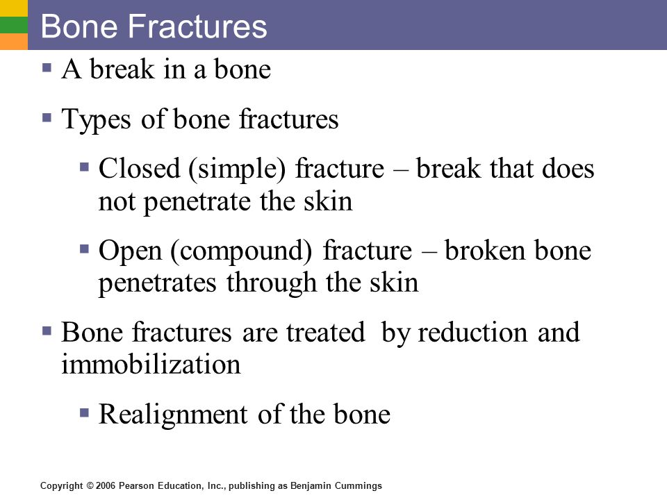 Copyright © 2006 Pearson Education, Inc., publishing as Benjamin Cummings Common Types of Fractures Table 5.2