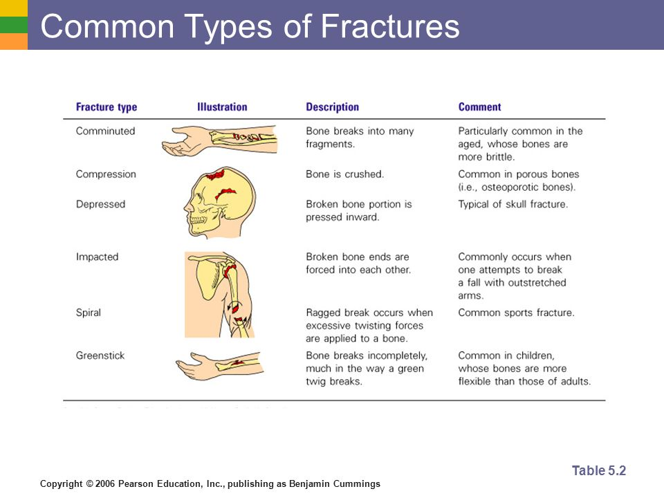 Copyright © 2006 Pearson Education, Inc., publishing as Benjamin Cummings Repair of Bone Fractures  Hematoma (blood-filled swelling) is formed  Break is splinted by fibrocartilage to form a callus  Fibrocartilage callus is replaced by a bony callus  Bony callus is remodeled to form a permanent patch